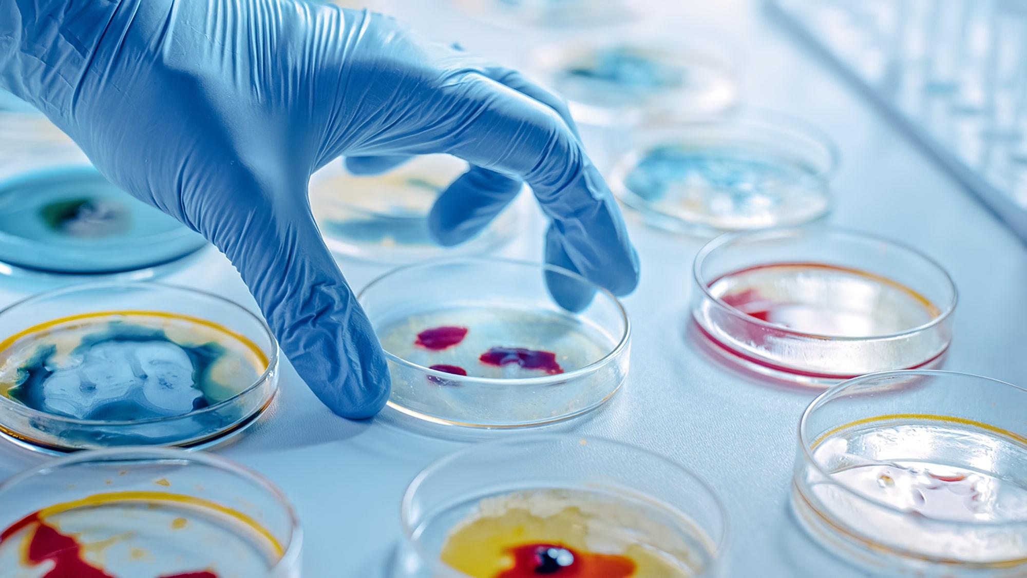 Mikrobiyoloji Analizi